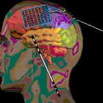 Neuro Surgical Products
