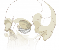 Osteomesh
